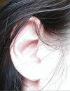 Ap_ear